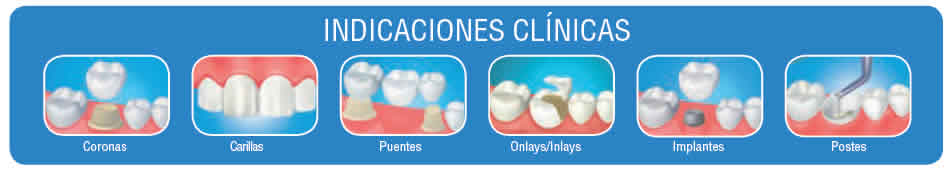 PANAVIA V5 INDICACIONES